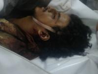 إستشهاد الشاب المقاوم محمد عبدالفتاح عوض هيثم اليافعي في جبهة المخا