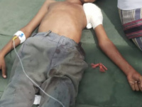 A child was injured by Houthi militia bullets in Hays